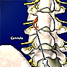 Lumbar Radio-frequency Neurotomy