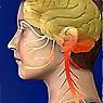 Whiplash Headache Image